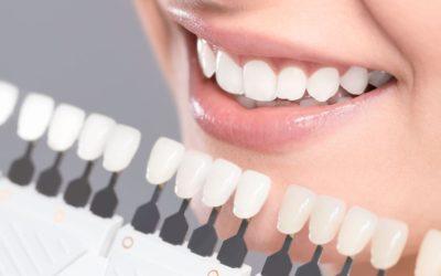 10 iemesli, kādēļ cilvēki balina zobus