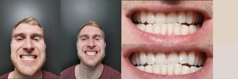 pirms-pec zobu balināšanas
