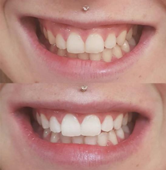 pirms-pec zobu balinasanas ar kapem