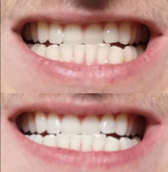 zobi pirms pec balinasanas