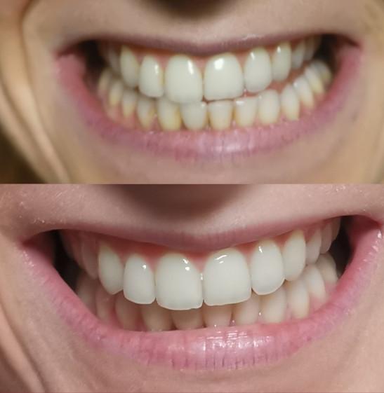 zobu balināšana LED