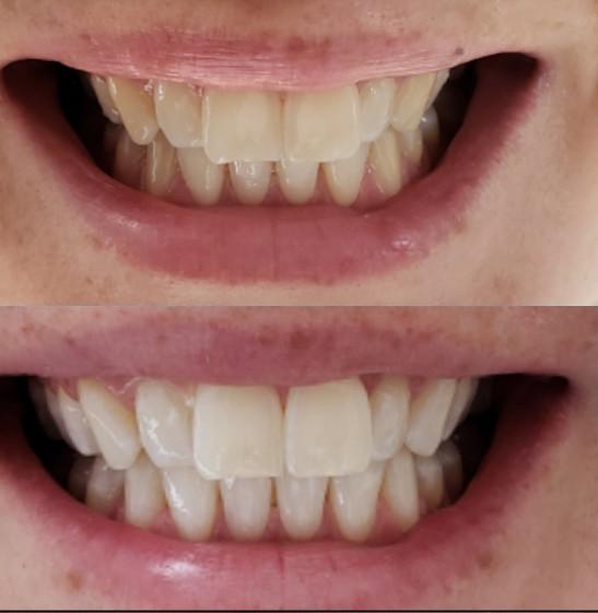 zobu balinasanas efekts