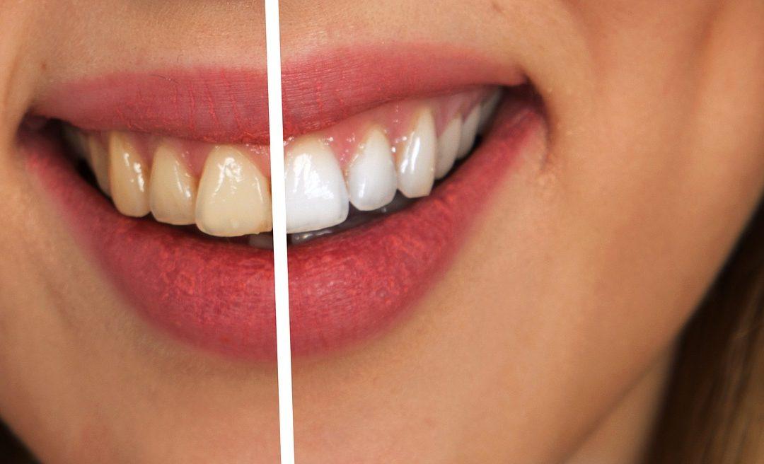 Dzelteni zobi: kādi ir iemesli un kā tos padarīt baltākus