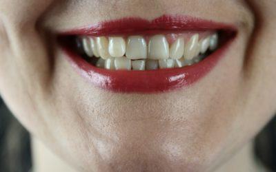 Zobu balināšanas izmaksas: mājās un pie zobārsta